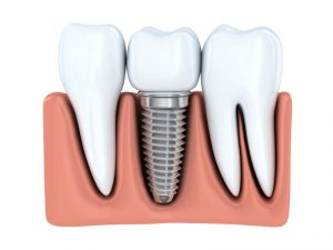 Learn why you should see a periodontist for your dental implants.