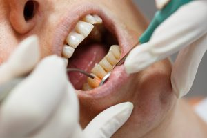 Patient receiving laser gum treatment