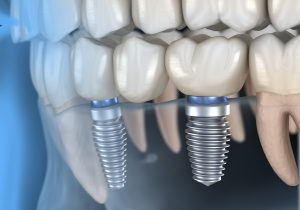Dental implants in jaw